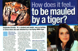 'I was mauled by a tiger'